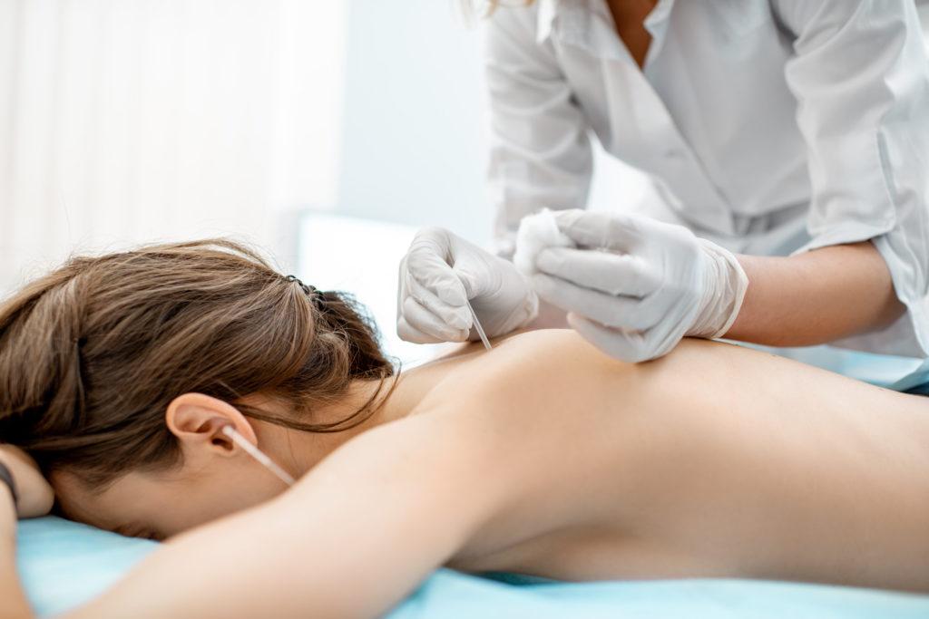 Acupuncture medical treatment