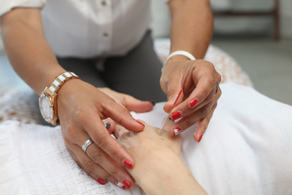 Hand Acupuncture Therapy
